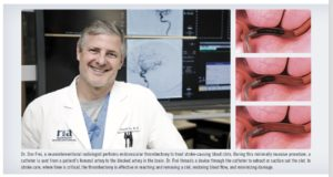 thrombectomy, Dr. Don Frei, neurointerventional radiologist